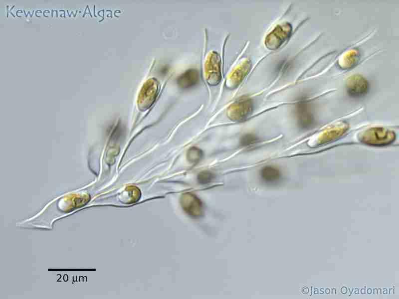 Microscopic Picture Of Golden Algae